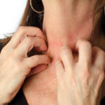 Understanding Body Hives: My Hives Attack & Solutions