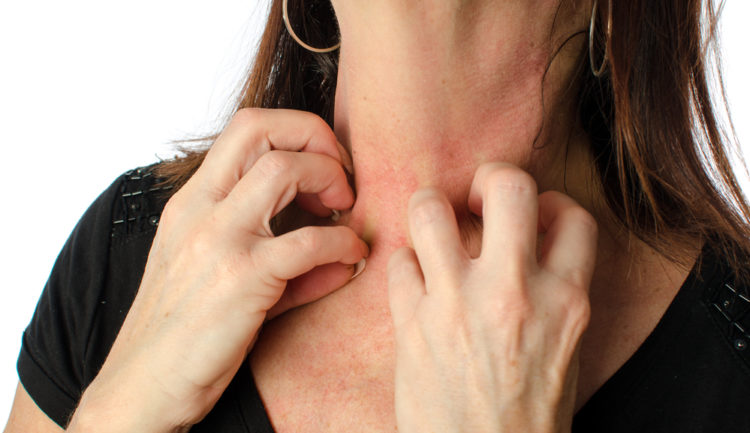 Understanding Body Hives: My Hives Attack: Tips And Solutions